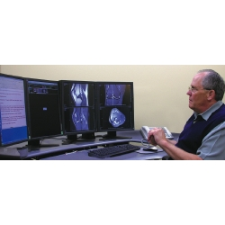 Eizo Helps Doctors at Kootenai Medical Center Make the Right Diagnosis Picture
