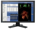 2MP EIZO FlexScan Medical Widescreen Color LCD  Thumbnail