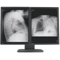 Dual Head 3MP Barco Coronis Grayscale Display - 5 Yr Warranty - Matching 5200 Card Thumbnail