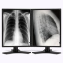 Dual Head 3MP NEC Medical Grayscale LCD w/ 5 Year Wnty & Hot Swap Thumbnail