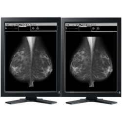 Dual Head 5MP EIZO GS521 LCD for Mammography with nVIDIA card Picture