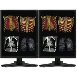Dual Head 3MP NEC Medical Color LCD w/ 5 Year Wnty & Hot Swap Picture