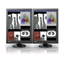 NEW! Dual Head 2MP EIZO RadiForce Color Thumbnail