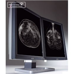 5 MP Barco Display System for Digital Breast Imaging Picture