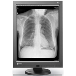 NEW! Single Head 3MP EIZO 21.3'' Radiforce Monochrome Picture