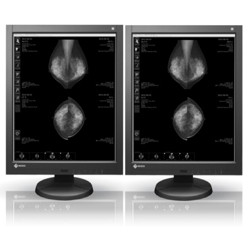 NEW! Dual Head 5MP EIZO RadiForce LCD Picture