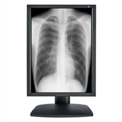 3MP Optik View 21.3 inch Grayscale Medical Grade LCD  with 5 year warranty Picture