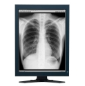 Dual Head 3MP EIZO Monochrome LCD built-in Swing Sensor & 5 Yr Warranty  Thumbnail