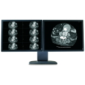 Dual Head 2MP Barco Coronis Grayscale Display System Thumbnail