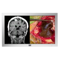 Barco 42'' High Definition LCD Display for the Operating Room Thumbnail
