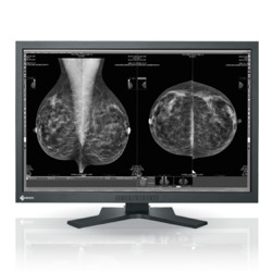 10MP EIZO for Mammography and Radiology Imaging Picture