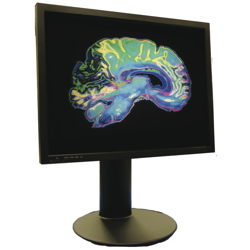 2MP Clinical Display with DICOM Picture