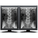 Dual Head 2MP EIZO Radiforce Monochrome Thumbnail