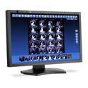 Single Head NEC 4MP 30'' LED-Backlight Mid-Brightness Color Thumbnail