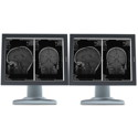 NEW! Dual Head 2MP Barco Nio Monochrome Thumbnail