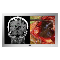 Barco 42'' Full HD Large-Screen Surgical Display Picture