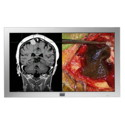Barco 42'' Full HD Large-Screen Surgical Display Thumbnail