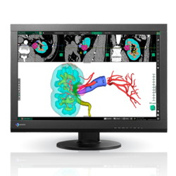 NEW! EIZO RadiForce 24.1'' Color Monitor Picture