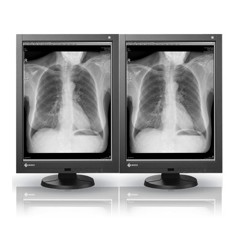 NEW! Dual Head 3MP EIZO Radiforce Monochrome  Picture