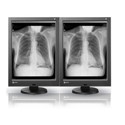 NEW! Dual Head 3MP EIZO Radiforce Monochrome  Thumbnail