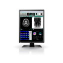 NEW! 3MP EIZO Radiforce 21.3'' Color LCD Thumbnail