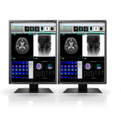 NEW! Double Head 3MP EIZO Radiforce 21.3'' Color LCD Picture