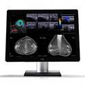 NEW! Barco Coronis Uniti 12MP Diagnostic Display Thumbnail