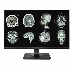NEW! 8MP LG Clinical Review Monitor (Black Bezel) Picture