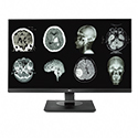 NEW! 8MP LG Clinical Review Monitor (Black Bezel) Thumbnail