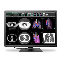 12MP Color Monitors