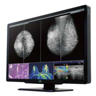 JVC CL-S1200 (CLS1200) 12MP Diagnostic Display